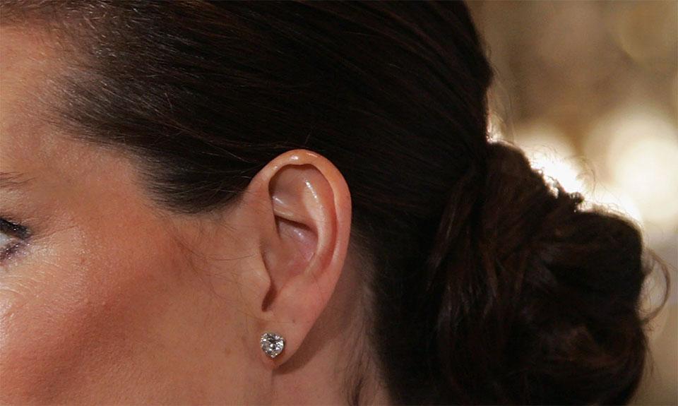 Ear tops